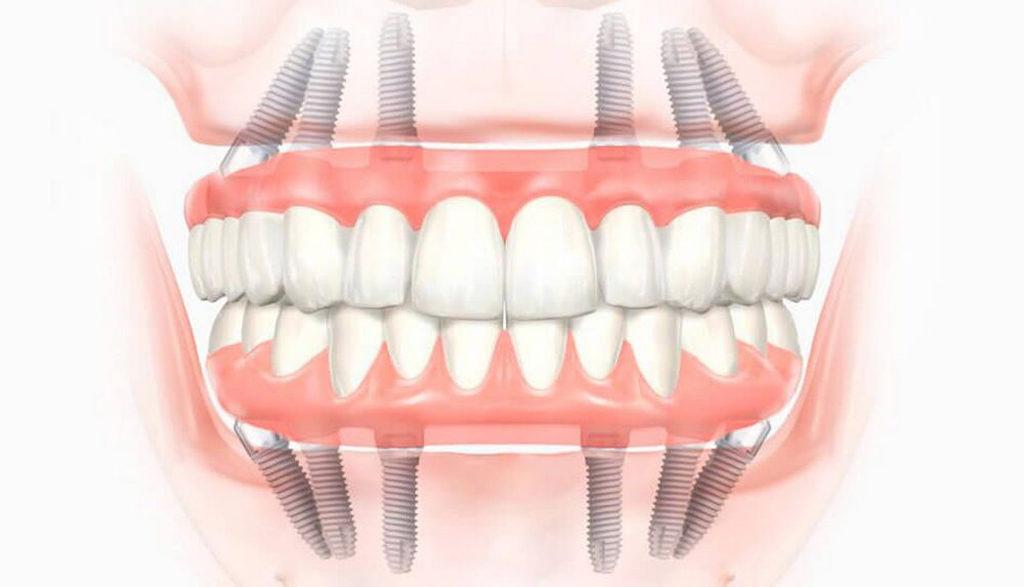 Implantatsiya-zubov-1024x587 Имплантация зубов